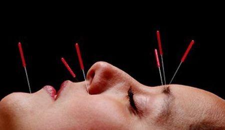 facial-acupuncture
